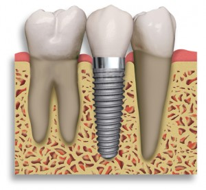 Tacoma dental implants dentist