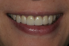 Lava crowns combined with porcelain veneers by Tacoma Cosmetic Dentist - the After picture