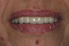 Using fix bridge to correct missing teeth by Tacoma Dentist Dr. Kevin Xu - the AFTER picture