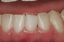 White fillings to restore broken tooth in 30 minutes by Tacoma Cosmetic Dentist Dr. Kevin Xu -- the AFTER photo