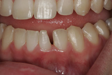 White fillings to restore broken tooth in 30 minutes by Tacoma Cosmetic Dentist Dr. Kevin Xu -- the BEFORE photo