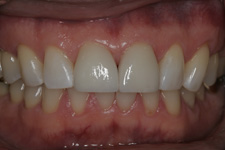 Close space with porcelain veneers in two appointments by tacoma Cosmetic Dentist Dr. Kevin Xu -- the After photo