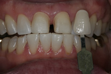 Close space with porcelain veneers in two appointments by tacoma Cosmetic Dentist Dr. Kevin Xu -- the Before photo