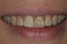 Lava crowns combined with porcelain veneers by Tacoma Cosmetic Dentist - the BEOFRE picture