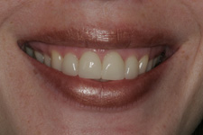 porcelain veneers by Tacoma Cosmetic Dentist Dr. Kevin Xu - the AFTER photo
