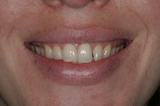 porcelain veneers by Tacoma Cosmetic Dentist Dr. Kevin Xu - the BEFORE photo