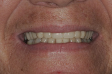 Full dentures by Tacoma Cosmetic Dentist - the After photo