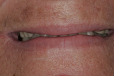 Full dentures by Tacoma Cosmetic Dentist - the Before photo