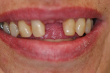 Using fix bridge to correct missing teeth by Tacoma Dentist Dr. Kevin Xu - the BEFORE picture