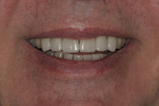 Porcelain veneers to correct worn down teeth by Tacoma Cosmetic Dentist Dr. Kevin Xu -- the AFTER picture