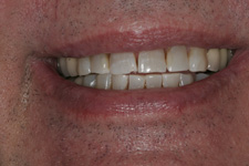 Porcelain veneers to correct worn down teeth by Tacoma Cosmetic Dentist Dr. Kevin Xu -- the Before picture