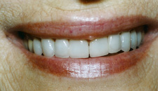 porcelain veneers to correct cracked teeth by Tacoma Cosmetic Dentist Dr. Kevin Xu -- the AFTER picture