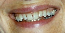 porcelain veneers to correct cracked teeth by Tacoma Cosmetic Dentist Dr. Kevin Xu -- the Before picture