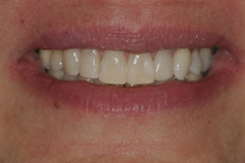 Correct the middle space with composite bonding in 40 minutes by Tacoma Cosmetic Dentist Dr. Kevin Xu -- the AFTER picture