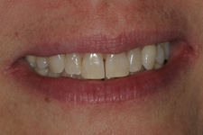 Correct the middle space with composite bonding in 40 minutes by Tacoma Cosmetic Dentist Dr. Kevin Xu -- the Before picture