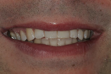 Composite bonding to correct the broken anteriors instantly by Tacoma Cosmetic dentist Dr. Kevin Xu -- the AFTER picture