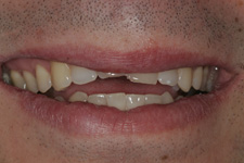 Composite bonding to correct the broken anteriors instantly by Tacoma Cosmetic dentist Dr. Kevin Xu -- the Before picture