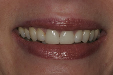 Veneer repair by Tacoma Cosmetic Dentist Dr. Kevin Xu - the After picture