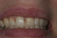 Veneer repair by Tacoma Cosmetic Dentist Dr. Kevin Xu - the BEFORE picture